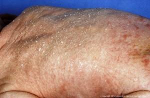 Congenitale ichthyosiforme erythrodermie